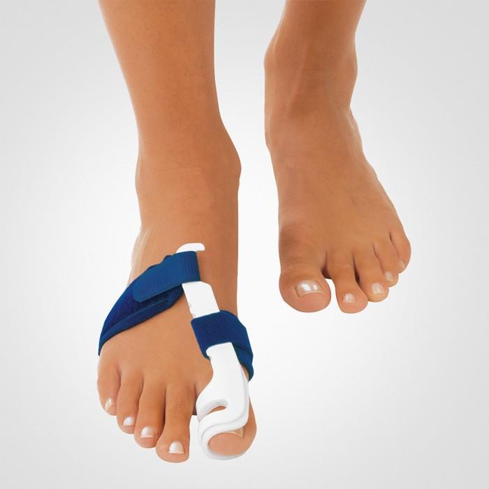 Почему выпирают косточки на ногах